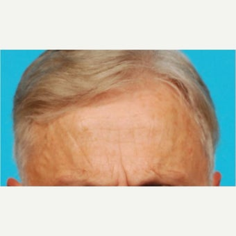 55-64 year old man treated with Botox