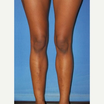 25-34 year old woman treated with Calf Implant after 2344233
