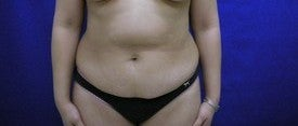 Tummy Tuck before 606501
