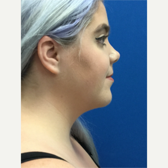 25-34 year old woman treated with Liposculpture of chin and neck after 3414355
