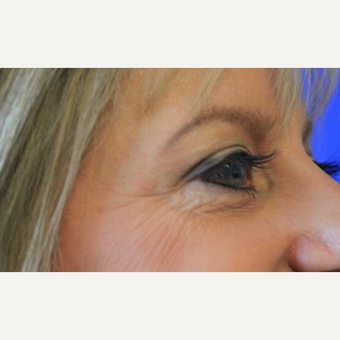 45-54 year old woman treated with Eyelid Surgery after 3669839