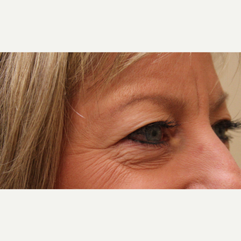 45-54 year old woman treated with Eyelid Surgery before 3669839