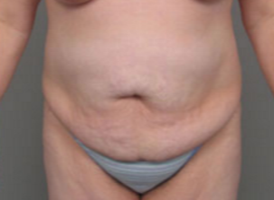 45-54 year old woman treated with Tummy Tuck before 3282386