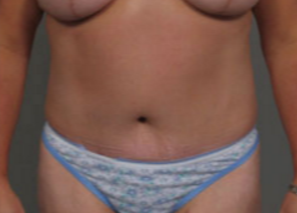 45-54 year old woman treated with Tummy Tuck after 3282386