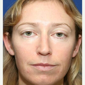 25-34 year old woman treated with Cheek Implants, Chin Implant, Nose Surgery and Fat Grafts after 1950056
