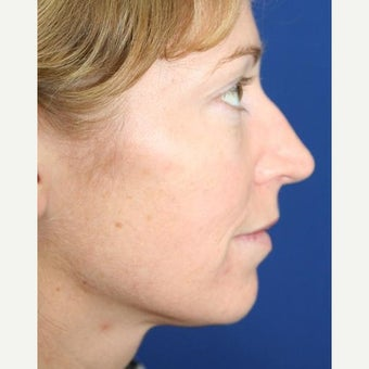 25-34 year old woman treated with Cheek Implants, Chin Implant, Nose Surgery and Fat Grafts 1950056