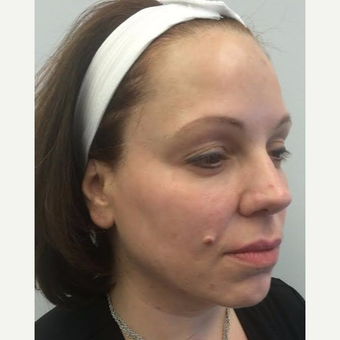 45-54 year old woman treated with Ultherapy after 3220493