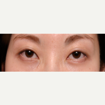 25-34 year old woman treated with Eye Bags Treatment after 3135562