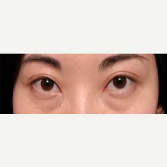 25-34 year old woman treated with Eye Bags Treatment before 3135562