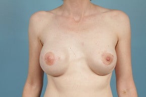 Breast Reconstruction after 1012709