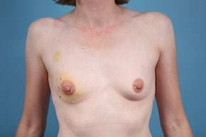 Breast Reconstruction before 1012709