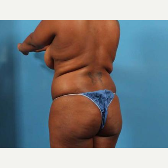 25-34 year old woman treated with Brazilian Butt Lift before 3093521