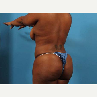 25-34 year old woman treated with Brazilian Butt Lift after 3093521