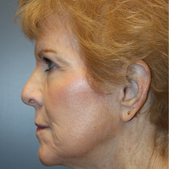 65-74 year old woman treated with Facelift after 3808368
