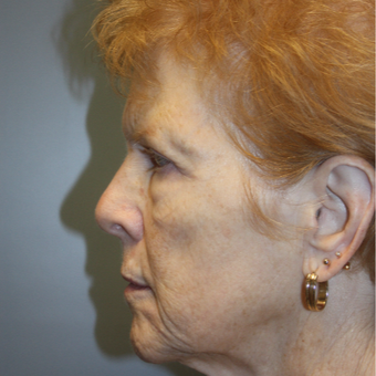 65-74 year old woman treated with Facelift before 3808368