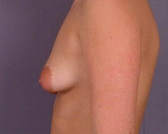 Breast Asymmetry Correction before 281323