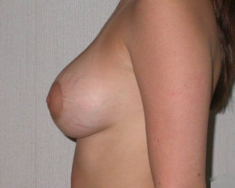 Breast Asymmetry Correction after 281323