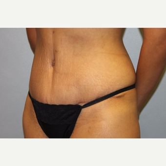 25-34 year old woman treated with Tummy Tuck after 3529350