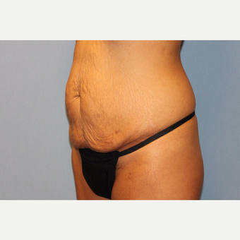 25-34 year old woman treated with Tummy Tuck before 3529350