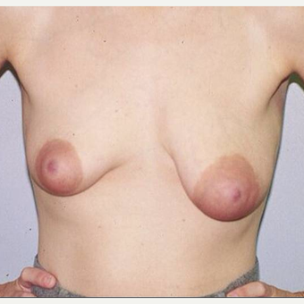 36 year old woman treated with Breast Lift before 3482537
