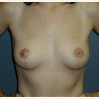 36 year old woman treated with Breast Lift after 3482537