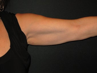 54 Year Old Female with Arm Lift Surgery 1119413