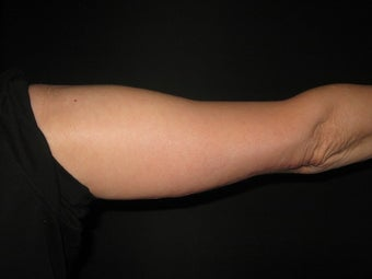 54 Year Old Female with Arm Lift Surgery after 1119413