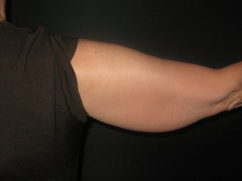 54 Year Old Female with Arm Lift Surgery before 1119413