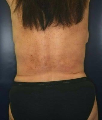 55-64 year old woman treated with Liposuction after 2198790