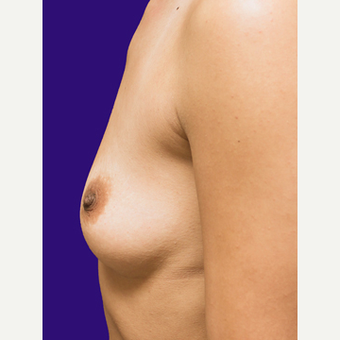 25-34 year old woman treated with Breast Lift with Implants before 3520132