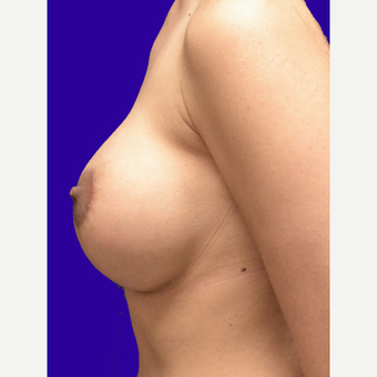 25-34 year old woman treated with Breast Lift with Implants after 3520132