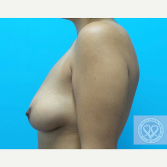 25-34 year old woman treated with Mentor Breast Implants before 3725900