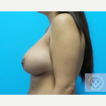 25-34 year old woman treated with Mentor Breast Implants after 3725900