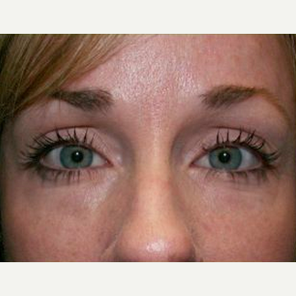 Woman treated with Juvederm to Under Eye after 1574521