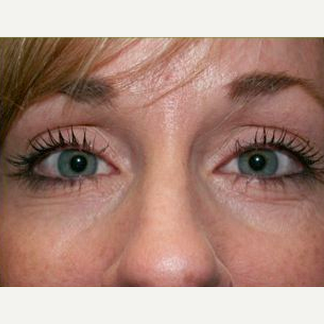 Woman treated with Juvederm to Under Eye before 1574521