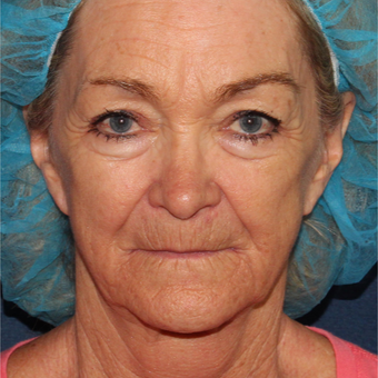 67 year old woman treated with CO2 and Erbium Laser Resurfacing before 3630302