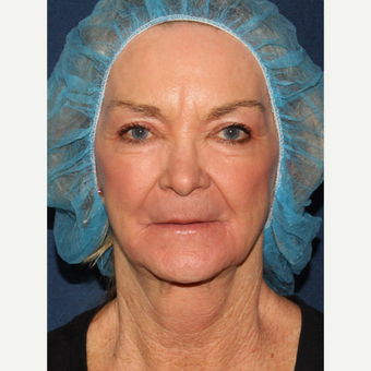 67 year old woman treated with CO2 and Erbium Laser Resurfacing after 3630302