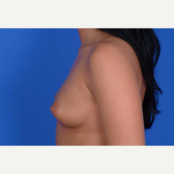 25-34 year old woman treated with Breast Augmentation before 3137552