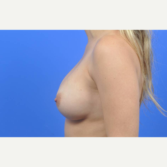 25-34 year old woman treated with Breast Augmentation after 3137552