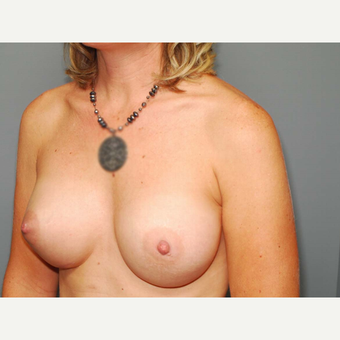 41 y/o Inframammary Sub Muscular Breast Augmentation after 3066035
