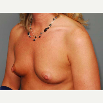 41 y/o Inframammary Sub Muscular Breast Augmentation before 3066035