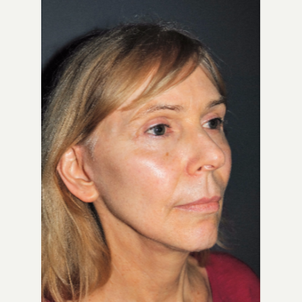 Softening and Rejuvenating with a Facelift after 3387823