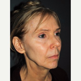 Softening and Rejuvenating with a Facelift before 3387823