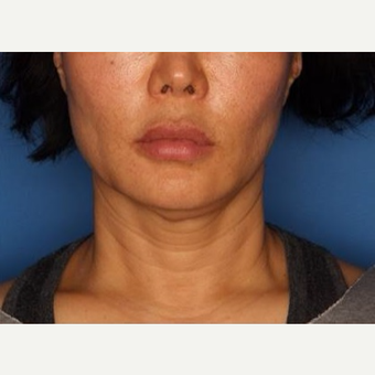 45-54 year old woman treated with Ultherapy before 3710721