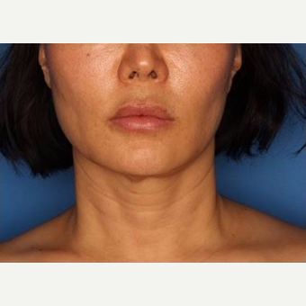 45-54 year old woman treated with Ultherapy after 3710721