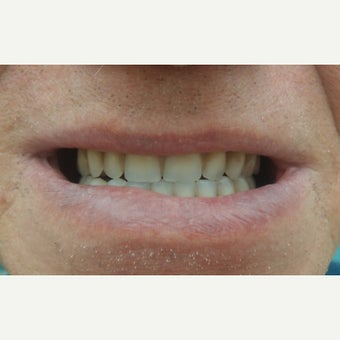 55-64 year old man treated with Dental Implants after 1797779