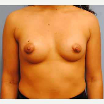 31 year old woman-submuscular 250 cc silicone implants - periareolar incision after 3077436