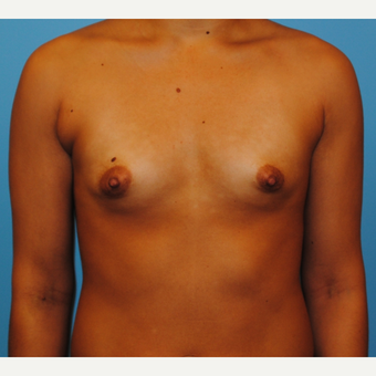 31 year old woman-submuscular 250 cc silicone implants - periareolar incision before 3077436
