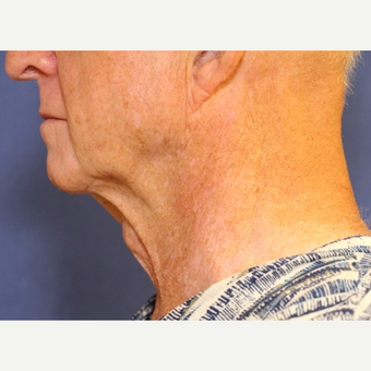 79 year old  man treated with an open neck lift before 3054440