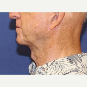 79 year old  man treated with an open neck lift after 3054440